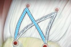 SpeedBridge® – Knotless Transosseous Equivalent Rotator Cuff Repair