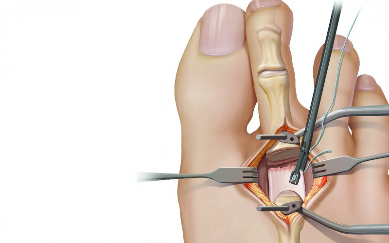 Complete Plantar Plate Repair System – Resuscitate your MTP joint correction