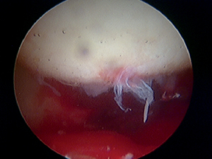 Figure 2. Arthroscopic view of the LT showing a partial tear (picture courtesy of A. Bajwa). Articles_arthroscopy_photo3