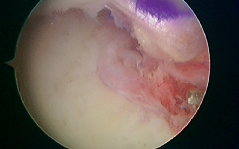 Ligamentum teres injuries and hip arthroscopy