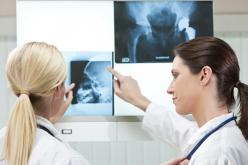 Hip replacement an excellent option for young juvenile arthritis patients