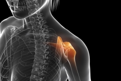Prompt medical care for a shoulder dislocation prevents repeat dislocations