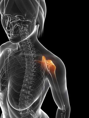 Prompt care for dislocated shoulders prevents repeat injury
