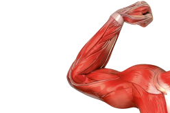 Subpectoral biceps tenodesis