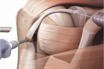 Proximal biceps tenodesis – forked-tip SwiveLock