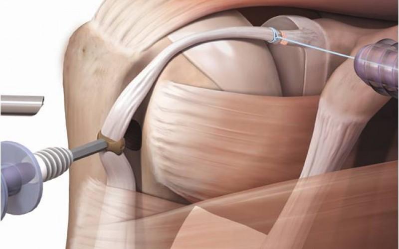 Proximal biceps tenodesis – forked-tip SwiveLock