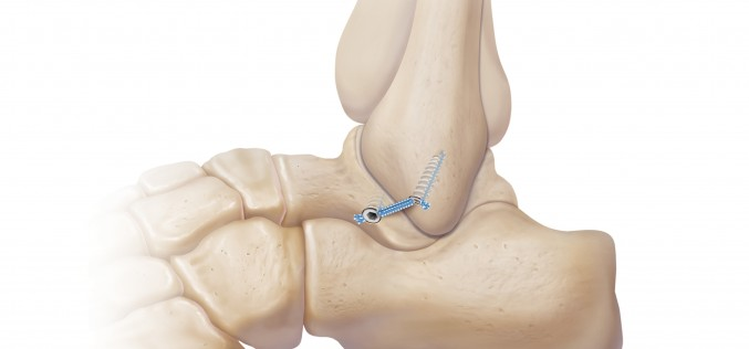 InternalBrace – double the strength of your lateral ankle ligament repair