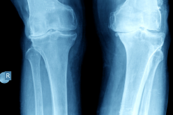 Call for patients for groundbreaking knee replacement surgery