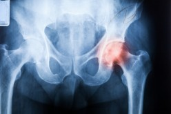 Super cap spares tissue in hip replacement surgery