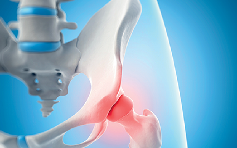 More UK regulation of hip replacement devices needed to prevent unnecessary surgery