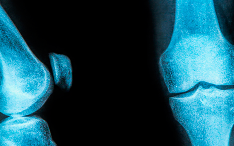 No need to treat stable meniscus tears during acl surgery