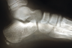 Plantar plate injury and repair techniques