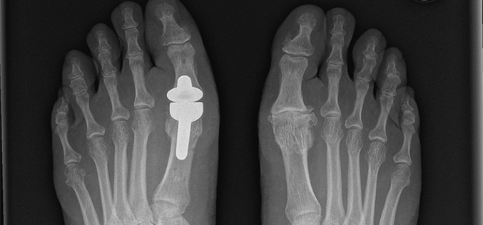 MTP joint replacement for hallux rigidus: a developing field