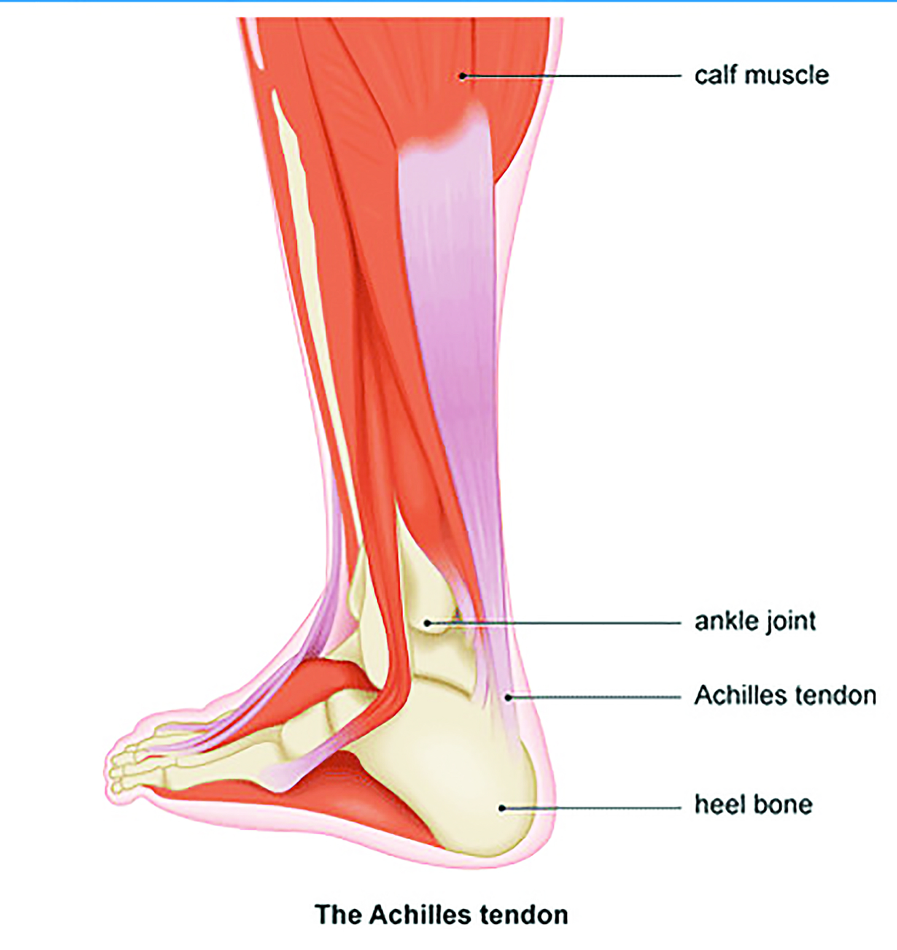 Treatment options for chronic Achilles tendon disorders