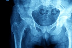 Hip osteoarthritis may not appear on X-ray