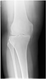 Knee X-rays pre-op