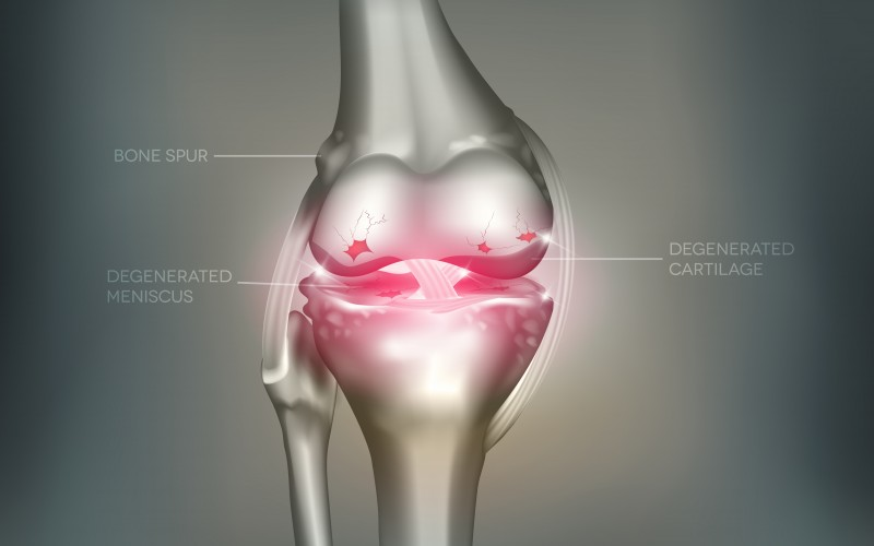 Ozone gas injections may do the trick for knee osteoarthritis sufferers