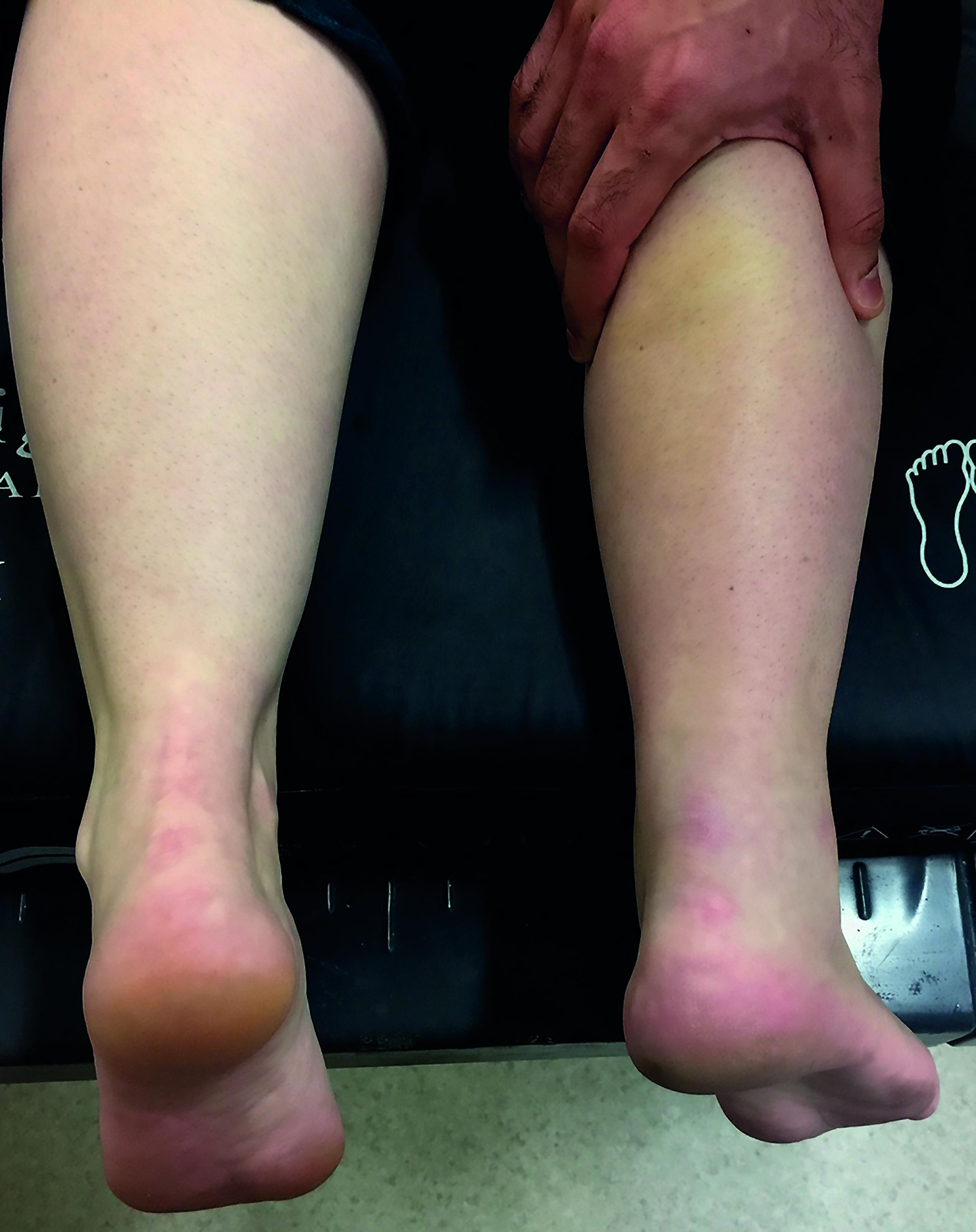 Non Operative Treatment Of Acute Achilles Tendon Rupture