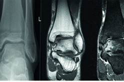 Osteochondral lesions of the talus and the role of ankle arthroscopy
