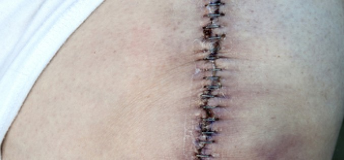 Newer pain management strategies can lead to quicker, shorter recovery after total knee replacements