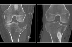 Ultra-low dose CT scans successfully detect fractures