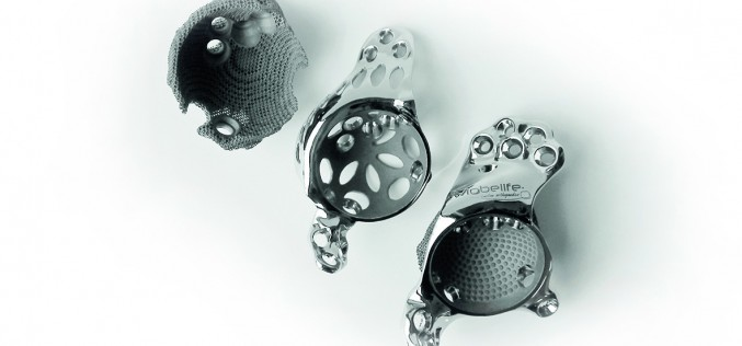 JRI Orthopaedics to offer 3D-printed implants through pioneering partnership