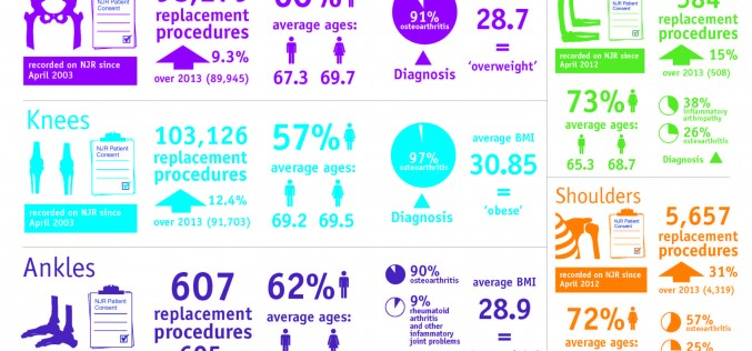 Key facts about joint replacement surgery by National Joint Registry