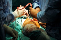 Metal hip replacements implanted since 2006 more prone to failure
