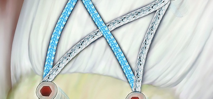 SpeedBridge® – Knotless double row rotator cuff repair