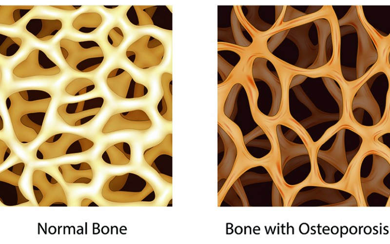 New index could help identify women at risk for rapid bone loss