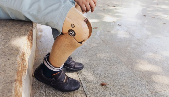 Cause of phantom limb pain in amputees, and potential treatment, identified