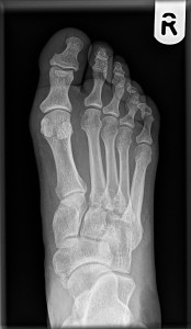Figure 1: Non-weight bearing radiograph showing no malalignment