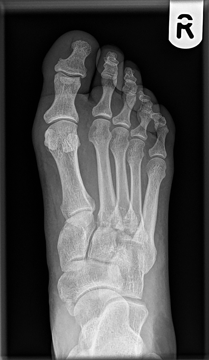 grade 1 lisfranc sprain)