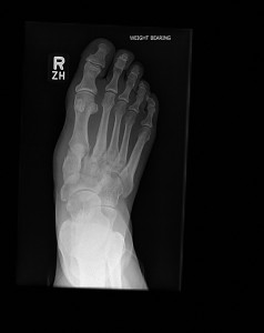 Figure 2: Dorsoplantar weight-bearing radiograph showing malalignment of the second metartarsal with the medial cuneiform and widening of the joint space between the bases of the first and second metartarsals.