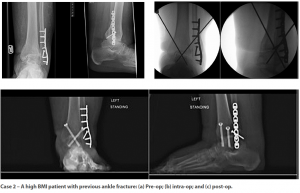 Case 2: A high BMI patient with previous ankle fracture: (a) Pre-op; (b) intra-op; and (c) post-op