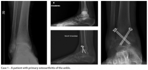 Case 1: A patient with primary osteoarthritis of the ankle.