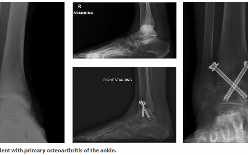 Arthroscopic ankle arthrodesis: A gold standard in current management?