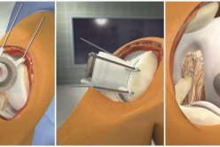 Pioneering mobile training simulation demonstrates latest technique in patient-specific knee implants