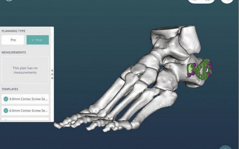 New App enables orthopaedic surgeons to check surgery plans on the go
