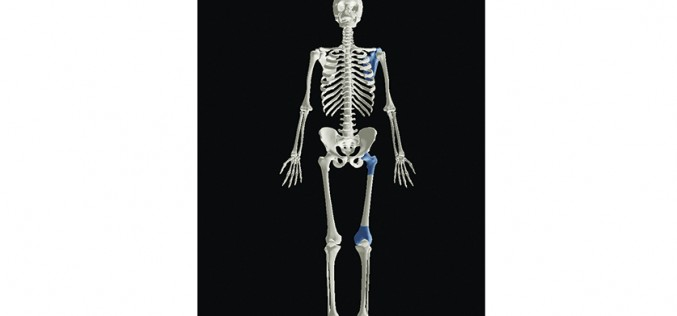 Oxford scientists' 3D human reveal how joint conditions have evolved