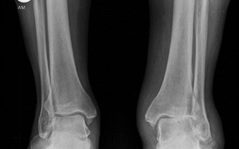 Joint-preserving options for eccentric ankle osteoarthritis