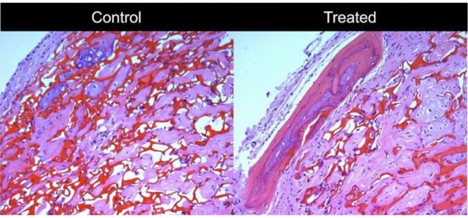 The key to regulating bone-building cells