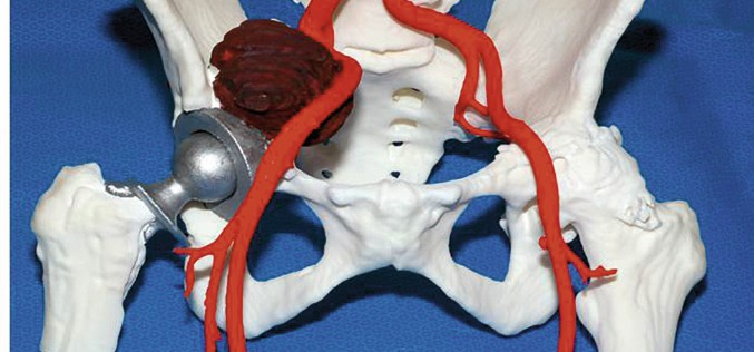 Personalised orthopaedics – using 3D printing for tailor-made technical teaching, pre-operative planning, bespoke implants and precise placement of implants