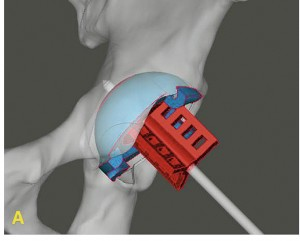 "Figure 2 – 3D PSI ""Bullseye guides"" uses multiple instruments to remove and confirm proper removal of bone, assists with and confirms proper implant placement. A) AP view showing orientation of the jig."