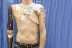 Prosthetic arm technology that detects spinal nerve signals