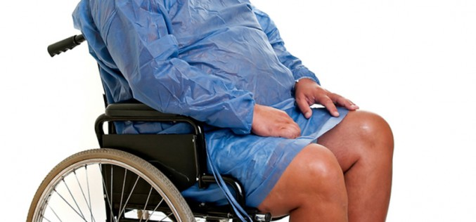 Obese patients don't need to lose weight before total joint replacement
