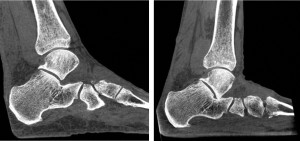 Figure 3: Non-weight bearing vs. weight-bearing foot image. A natural weight-bearing configuration enables a more accurate determination of the relative placement and orientation of the bones in the foot, ankle and knee while under realistic load conditions.