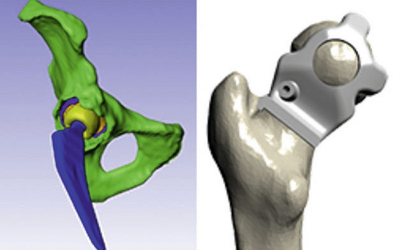 Corin and Simpleware develop personalised hip replacements