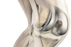 ATTUNE® knee system four-year revision rate is lower than total knee class