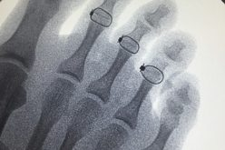 Hammertoe correction presents real-world challenges